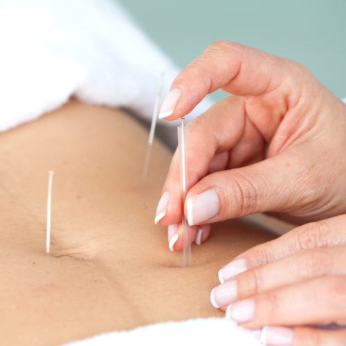 AKND north york acupuncture and cupping
