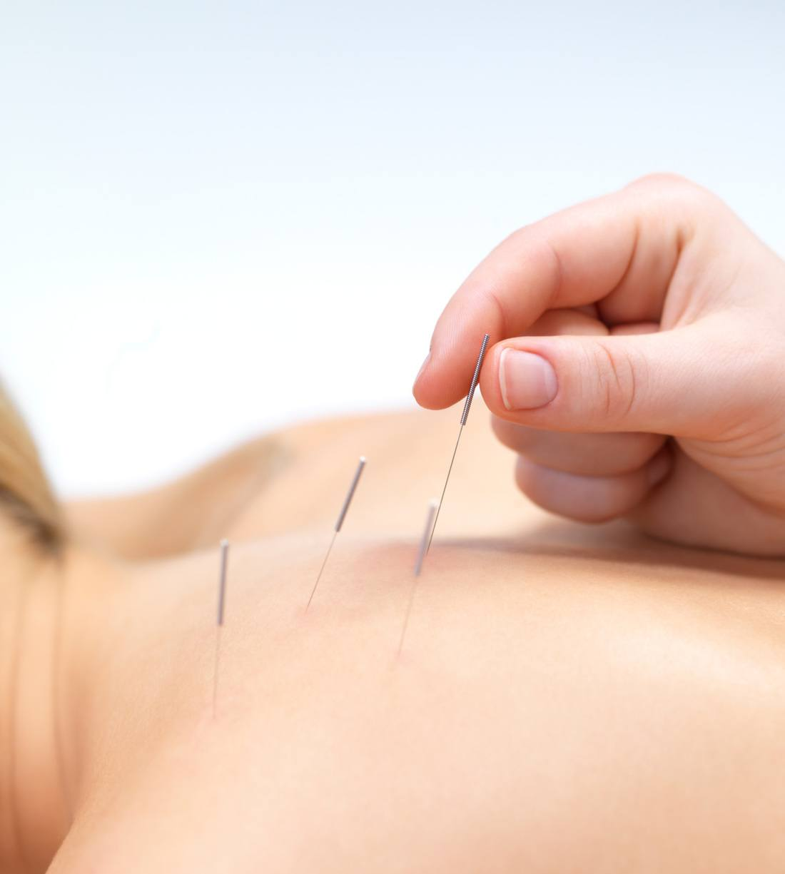 AKND North York Acupuncture